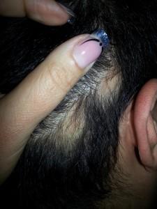 foltos-kopaszodas-hajgyogyaszat-2