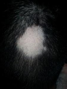 foltos-kopaszodas-hajgyogyaszat-3