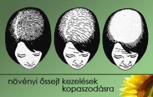 hajzsirosodas-hajgyogyaszat-3